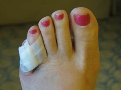 My sore toe