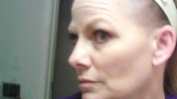 Skin Cancer is Not Something to Be Taken Lightly – A Woman's Story