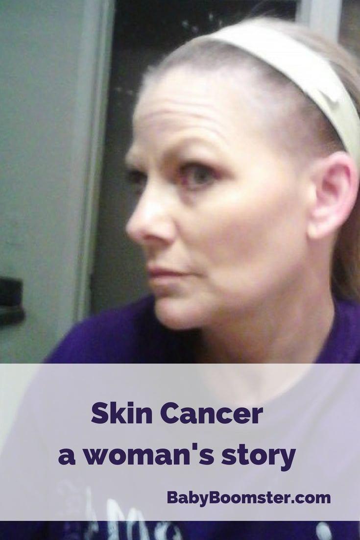 Baby Boomer Women | Wellness | Skin Cancer - Shelley Baker